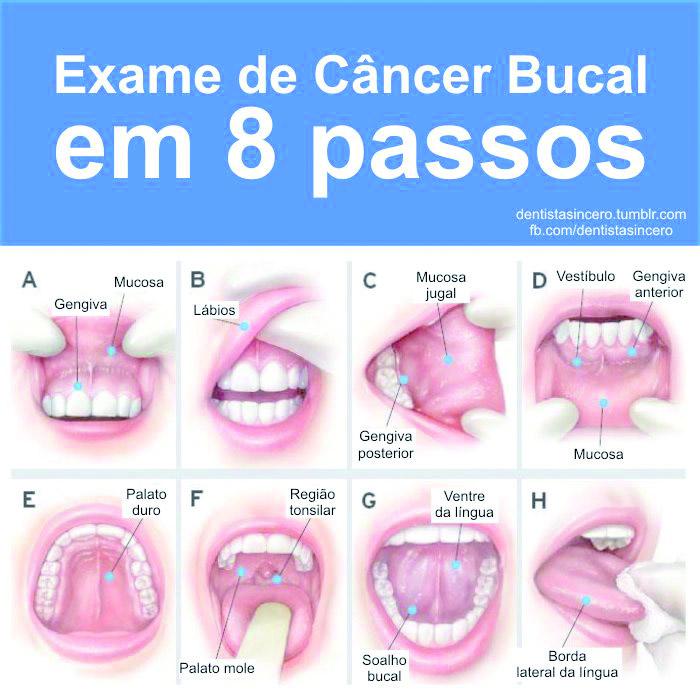 Cancerul Bucal (oral): Cauze, Simptome si Tratament | Dentaplus